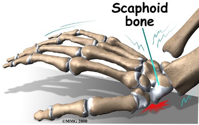 Scaphoid fracturesكسور العظم الزورقي برسغ 503.imgcache